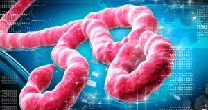 ebola-viru%cc%88su%cc%88-20141020130508
